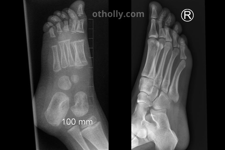 x ray of toddler foot compared to adult foot